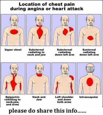 Pains of a Heart Attack